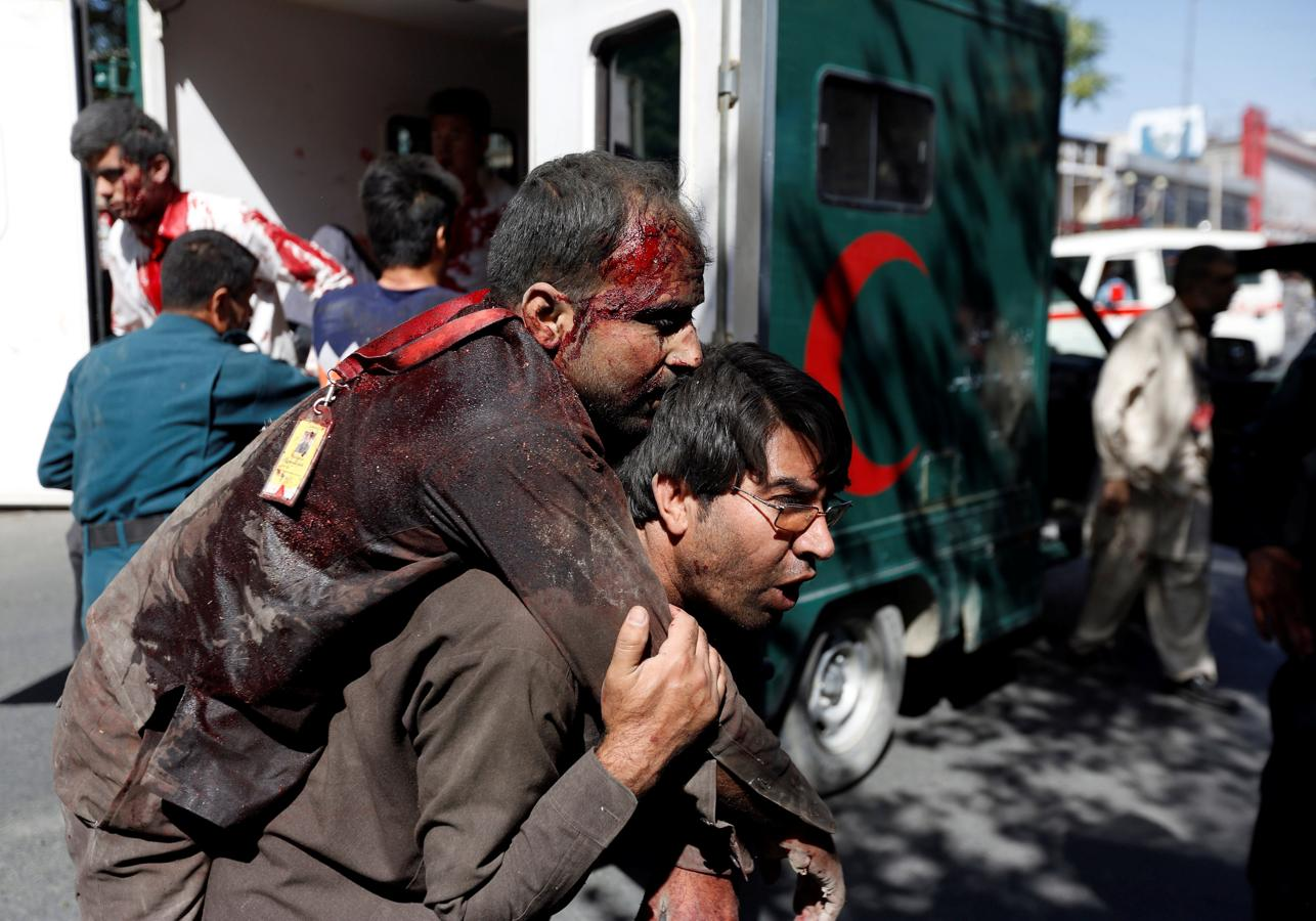 Injured Afghan men arrive at a hospital after a blast in Kabul, Afghanistan May 31, 2017. (Reuters)